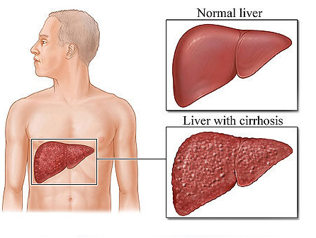 Get Best Chronic Liver Disease Treatment in Pune